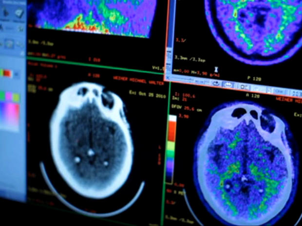 Obama pledges $130M for Alzheimer's research