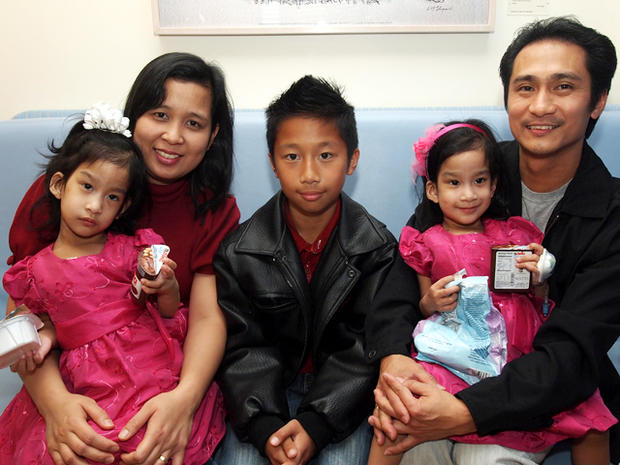 Formerly conjoined Sabuco twins: How are they now?