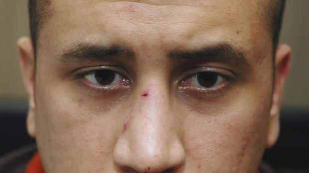 George Zimmerman's injuries