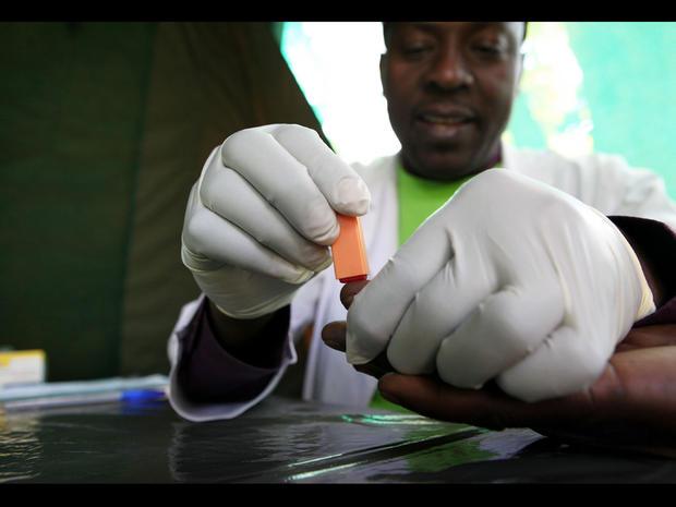 Adult male circumcision cbs news clip