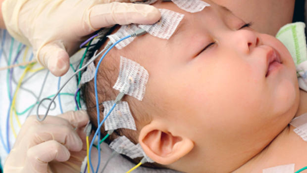 EEG brain scans may detect signs of autism in 2-year-olds ...