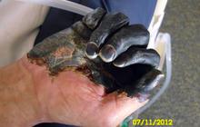 """Ore. man survives """"black death"""" plague (GRAPHIC IMAGES)"""