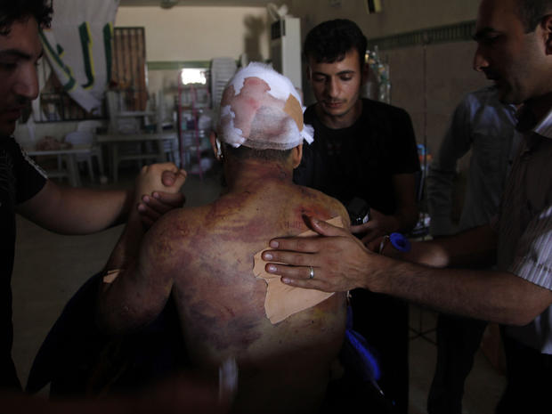 Mahmoud receives treatment