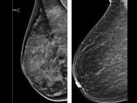 mammogram, breast density