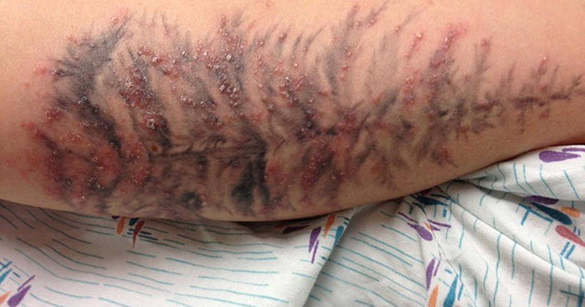 Infected tattoo outbreak traced to ink cbs news for Badly infected tattoo