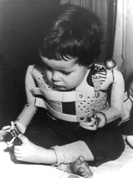 A 3-year-old girl, born without arms to a German mother who took the drug thalidomide, uses power-driven artificial arms in 1965.