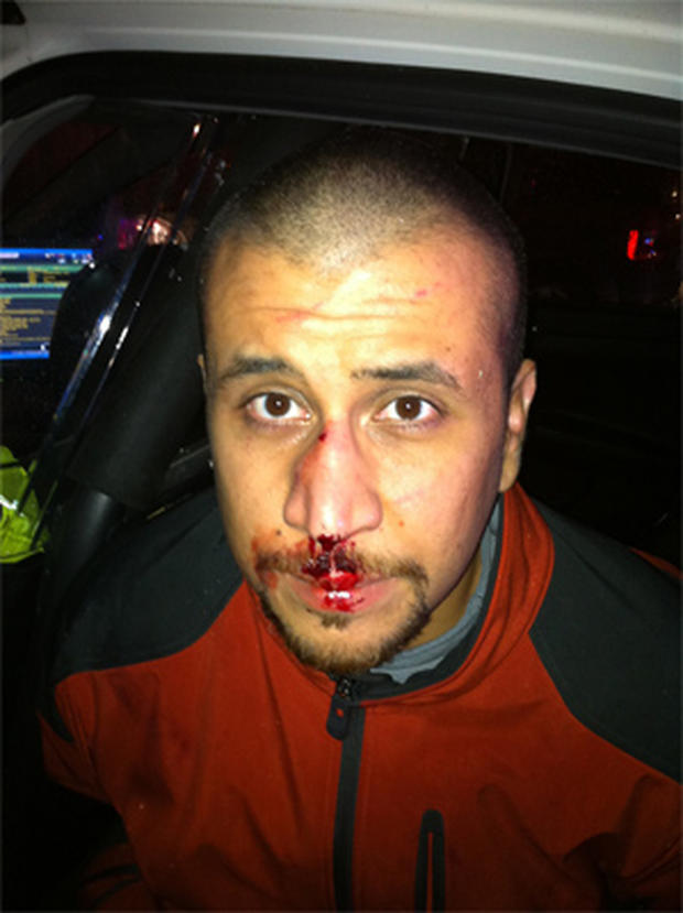 This photograph shows George Zimmerman, accused of killing unarmed teen Trayvon Martin, the night of their confrontation. It was made public by Zimmerman's lawyers on December 3, 2012.