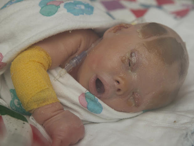 Meet Brenna, a baby with Harlequin Ichthyosis - Photo 24 ...