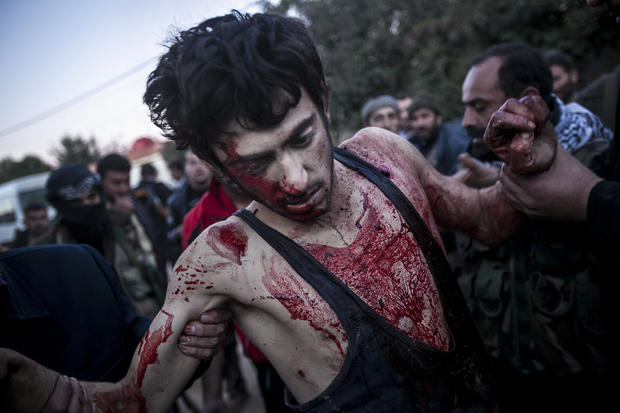 Syria_-injured.jpg