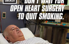 "CDC unveils latest graphic anti-smoking ads in 2013 ""Tips From Former Smokers"" campaign"
