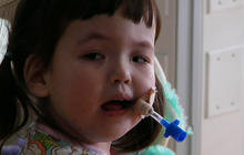 Windpipe made from stem cells help 2-year-old