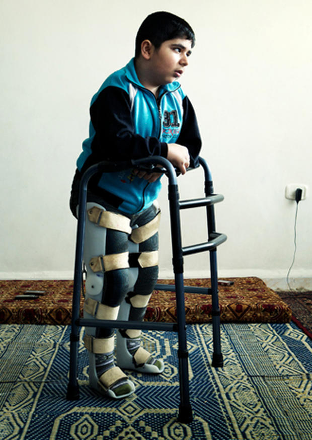 Bashar, 12, is virtually trapped in a 5th floor apartment