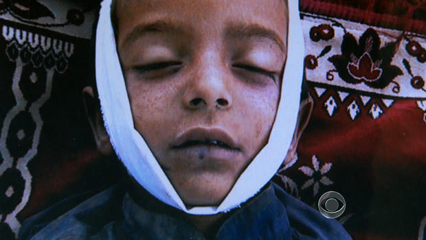 A picture of a Pakistani child Ackbar claims was killed in a drone strike.