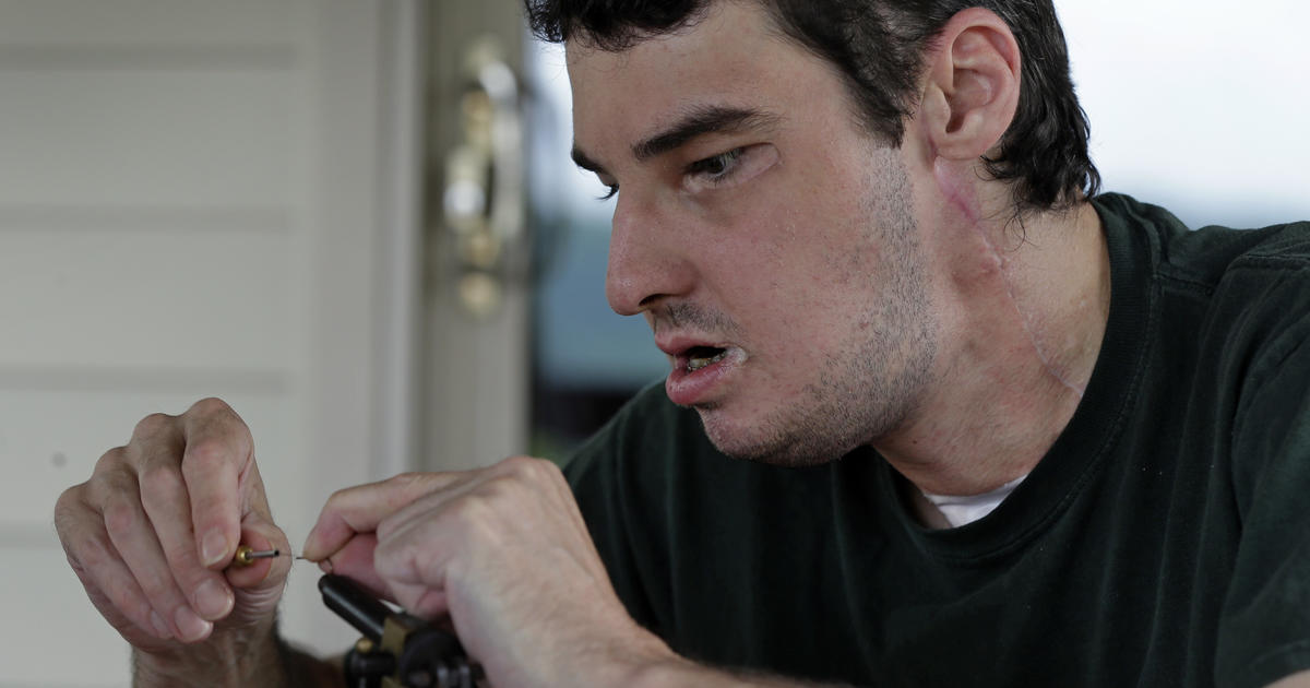 Face Transplant Patients Return To Normal Life P O 17 Pictures Cbs News