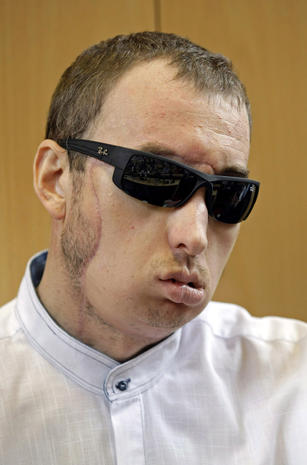 Polish face transplant patient leaves hospital