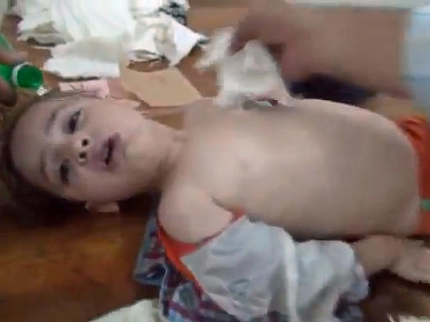 A young boy gasps for air in a makeshift hospital after an alleged chemical weapons attack on the eastern Ghouta suburbs of Damascus