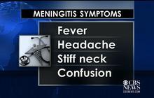 Rare meningitis outbreak at Princeton