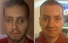 Face reconstructed with 3D printer