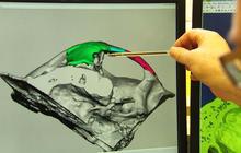 3D printer used to rebuild man's face