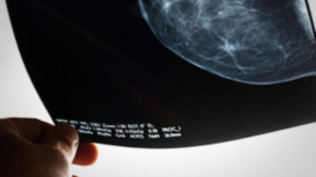 mammogram-examined-620x350.jpg