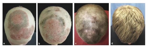 alopecia-hair-drug-jid-2014-0170-r1-figure-2.jpg