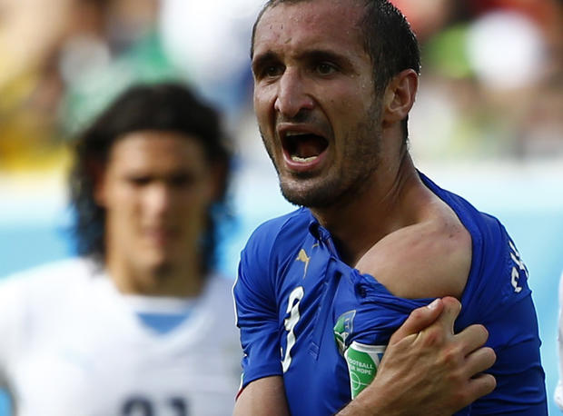 Italy's Giorgio Chiellini shows his shoulder, claiming he was bitten by Uruguay's Luis Suarez, during their 2014 World Cup Group D soccer match at the Dunas arena in Natal, Brazil on June 24, 2014