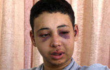 American teen allegedly beaten by Israeli police