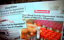 New blood test can help detect depression, study shows