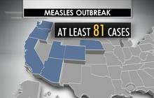 Should states allow parents to waive vaccinations?
