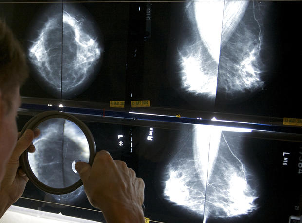 Breast cancer: 6 ways to reduce your risk