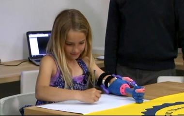 California girl gets high-tech 3D-printed prosthetic hand