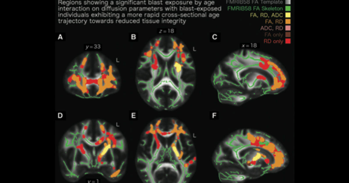 Brains of veterans near bomb blasts appear to age faster