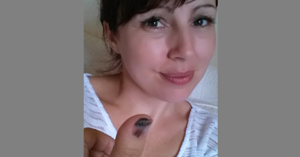 Melanoma can look like nail fungus: Woman\'s Facebook warning goes ...