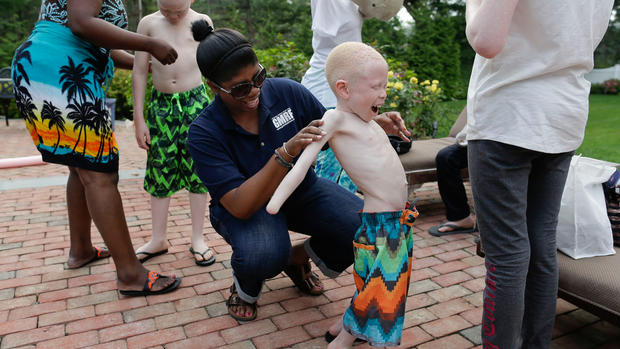 New limbs, new hope for Africa's hunted albino children