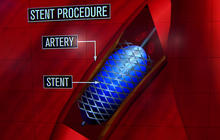 Bush's stent surgery: How did it work?