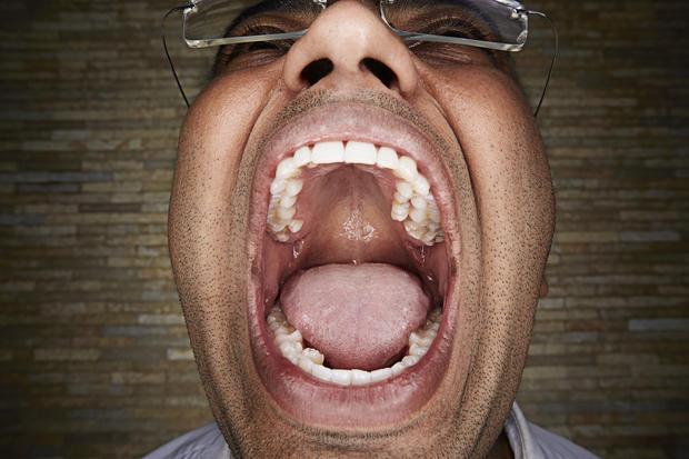 vijay-kumar-most-teeth-in-a-mouth0398.jpg