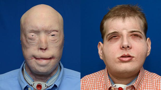 Are facial first transplant world very