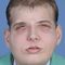 Patrick Hardison face transplant.png