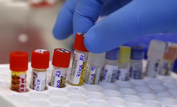 Zika-blood-tests.jpg