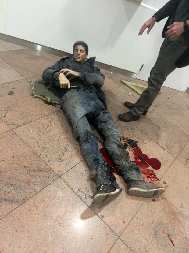 Wounded Belgian basketball player Sebastien Bellin lies on the ground in Zaventem Bruxelles International Airport in Brussels after explosions ripped through the departure hall on March 22, 2016.