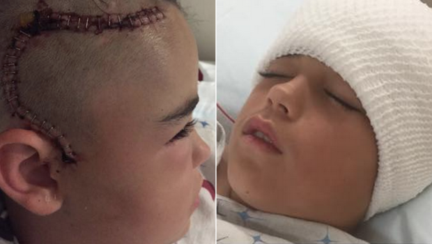 Mom spreads warning after son nearly dies 2 days after ...