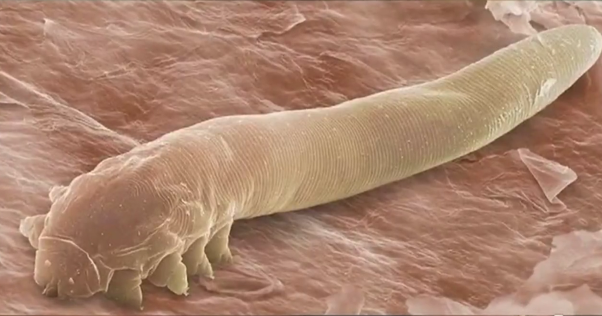 Eye mites: Millions of people have them and don't know it - CBS News