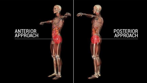 hip-replacement-splitv3.jpg