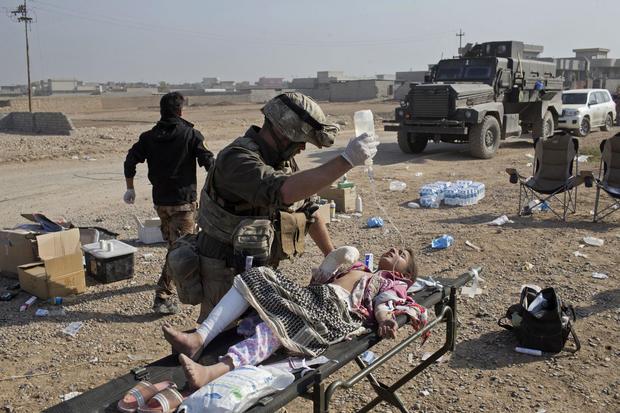 mosul-civilian-casualties-ap-16311518340656.jpg