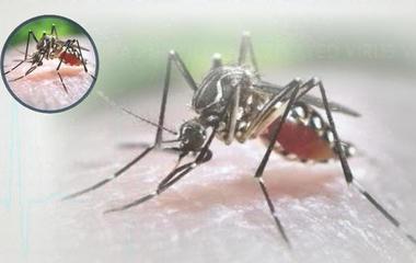 Human trials begin for Zika vaccine