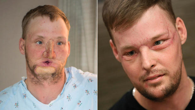 face-transplant-split.jpg