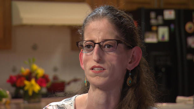 Woman's rare genetic disorder could hold the key to weight ...