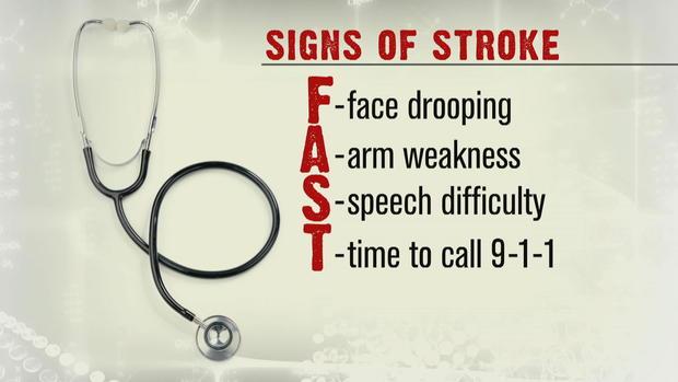 ctm-0309-stroke-signs.jpg