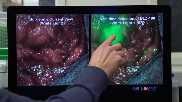 tumor-paint-on-screen-620.jpg