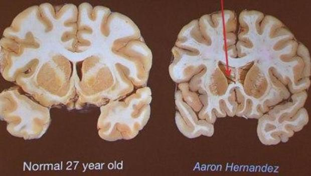 Aaron Hernandez's brain was severely damaged by disease ...